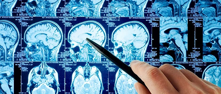 Изображение 1 - Неврология