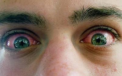 Изображение 3 - Лечение зависимости от курительных смесей - клиника Веримед