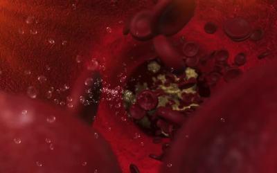 Алкоголь в кровеносном русле - клиника Веримед