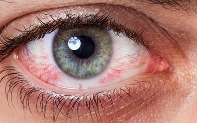 Раздражение слизистой глаз - клиника Веримед