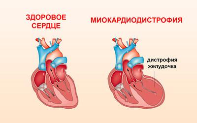 Миокардиодистрофия - клиника Веримед