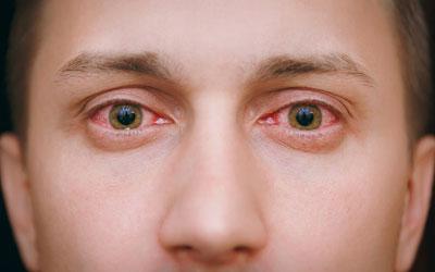 Повышает ли марихуаны давление последствия марихуаны видео