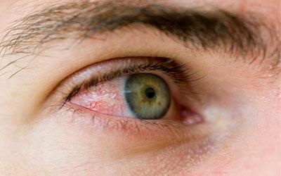 Покраснение белков глаз - Веримед