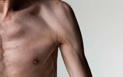 Жировая дистрофия у зависимых - Веримед