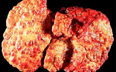 Алкогольный цирроз печени - хроническое заболевание - Веримед