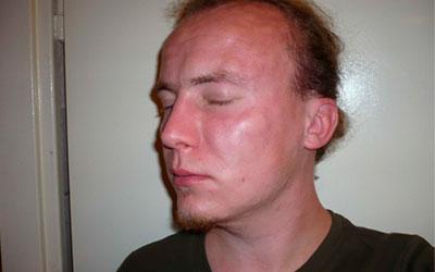 Что делать, когда после запоя отекло лицо - Веримед