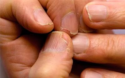 Ломкость ногтей - Веримед