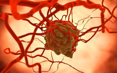 Противопоказания является злокачественные опухоли - Веримед