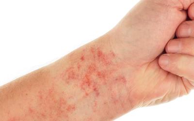 Тромбоцитопения и снижении свертываемости крови - Веримед