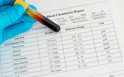 Печеночную недостаточность и рост уровня билирубина - Веримед