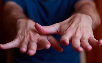 Хроническая форма патологии - Веримед