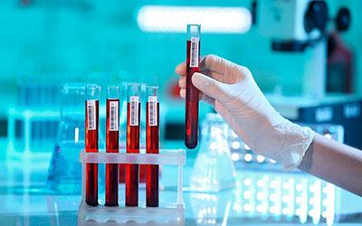 Анализ крови на хронический алкоголизм - Веримед