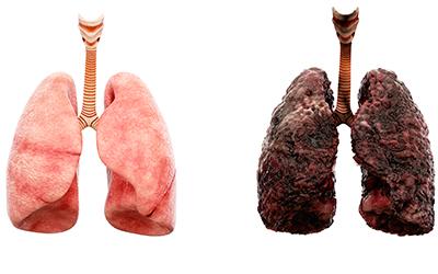 Последствия длительного курения - Веримед
