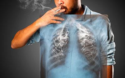 Рак вызывает курение - Веримед