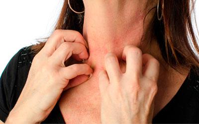 Аллергия на амфетамин - Веримед