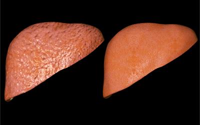 Острый гепатит - Веримед