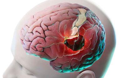 Тяжелые повреждения головного мозга - Веримед