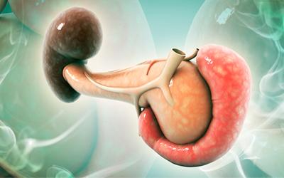 Воспаление поджелудочной железы - Веримед