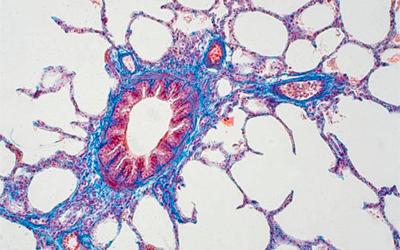 Метаболиты долгое время остаются в тканях - Веримед