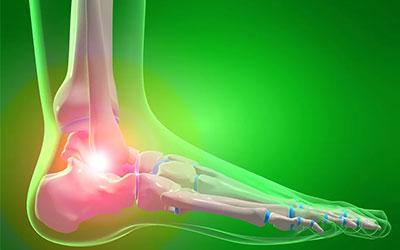 Болезни ног на фоне алкоголизма - Веримед