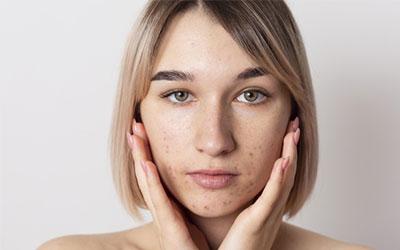 Как алкоголь влияет на кожу лица женщины - Веримед
