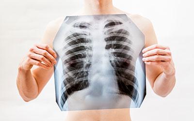 Нарушения дыхательной системы - Веримед