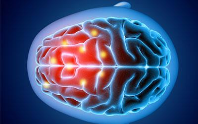 Страдает центральная нервная система - Веримед