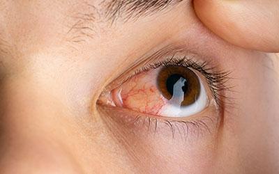 Покраснение глаз - Веримед