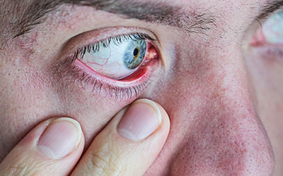 Расширенные зрачки и покраснение глазных яблок - Веримед