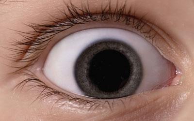 Что происходит с глазами - Веримед