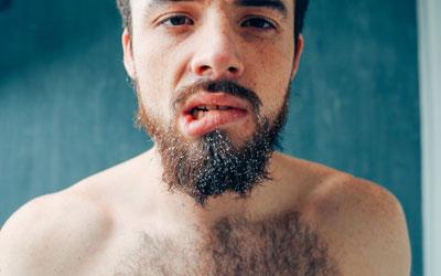 Покусывание губ - Веримед