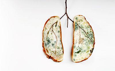 Токсическое поражение легких - Веримед
