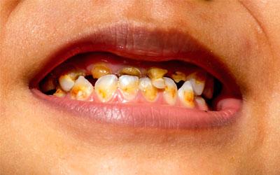 Желтизна и разрушение зубов - Веримед